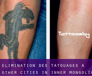 Élimination des tatouages à Other Cities in Inner Mongolia