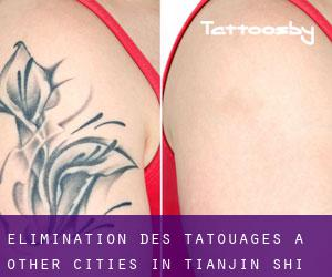 Élimination des tatouages à Other Cities in Tianjin Shi