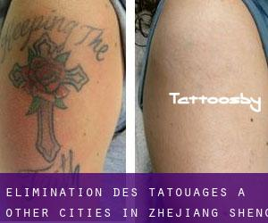 Élimination des tatouages à Other Cities in Zhejiang Sheng